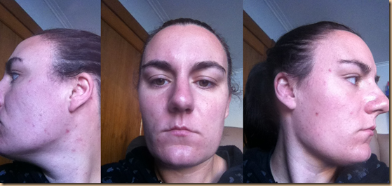"My ""before"" pictures, taken 5/4/2013"